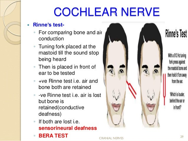 cranial nerve assessment..simple and easy to perform for medics and p…, Skeleton