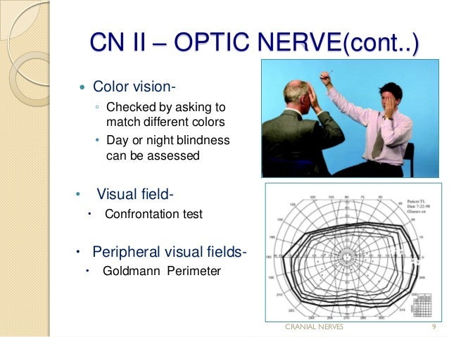 Cranial nerve assessment..Simple and Easy to perform for medics and P…
