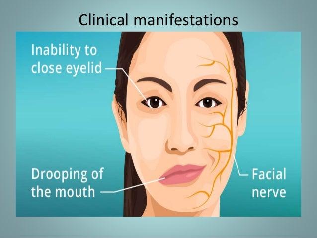Facial paralysis and neuralgia photo 152