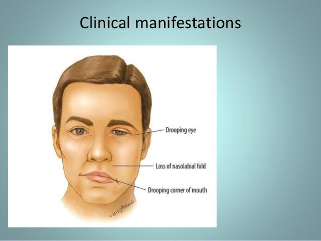 Facial paralysis and neuralgia photo