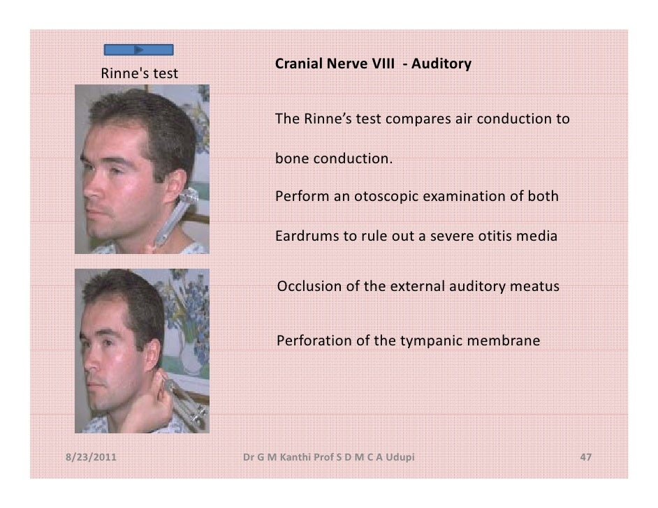 Cranial Nerve Exmination