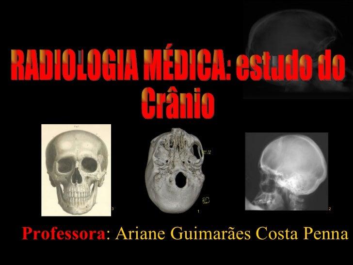 <ul><ul><li>Professora : Ariane Guimarães Costa Penna </li></ul></ul>RADIOLOGIA MÉDICA: estudo do Crânio 1 3 2