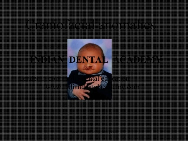 Craniofacial anomalies INDIAN DENTAL ACADEMY Leader in continuing dental education www.indiandentalacademy.com  www.indian...