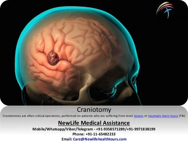 Brain tumor surgery and sex
