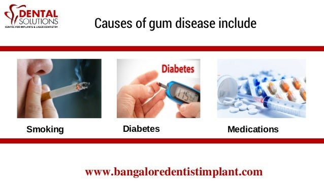 Painless Gum Treatment In Bangalore | Good Dental Clinic In