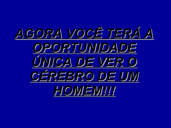 AGORA VOCÊ TERÁ A OPORTUNIDADE ÚNICA DE VER O CÉREBRO DE UM HOMEM!!!