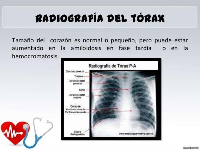 Los cinturones ortopédicos a la osteocondrosis