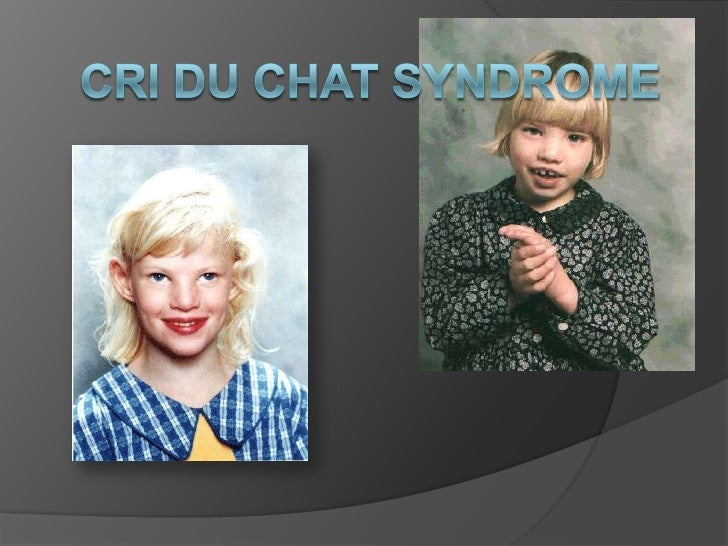 what are the symptoms of cri du chat syndrome