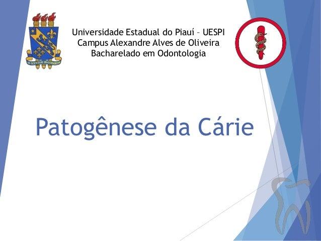 Universidade Estadual do Piauí – UESPI Campus Alexandre Alves de Oliveira Bacharelado em Odontologia  Patogênese da Cárie
