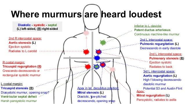 machine like murmur
