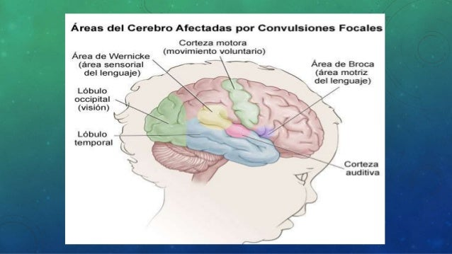 CONVULSIONES GENERALIZADAS • Afectan a ambos lados del cerebro • Existe pérdida del conocimiento y un período postictal de...