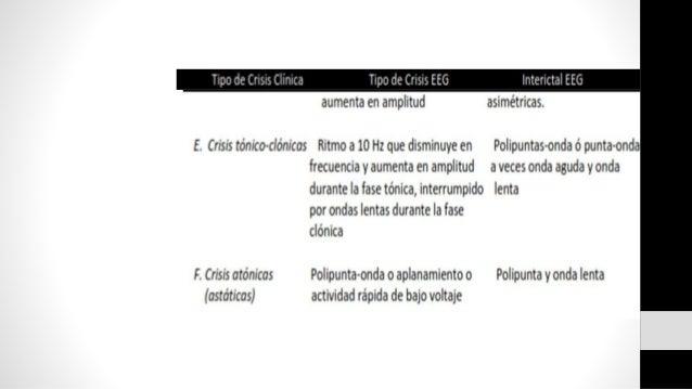 Convulsiones febriles Simples • Tipo Generalizadas (Tónico- clónicas) • No características focales • Duran menos de 15-20 ...