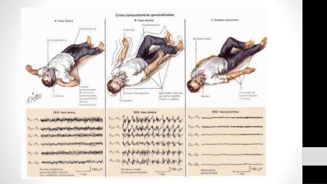 Tratamiento • Continua convulsion: • Valproato de sodio IV: 20-40mg/Kg Vel: 3-6 mg/Kg/min • Valproato de magnesio rectal: ...