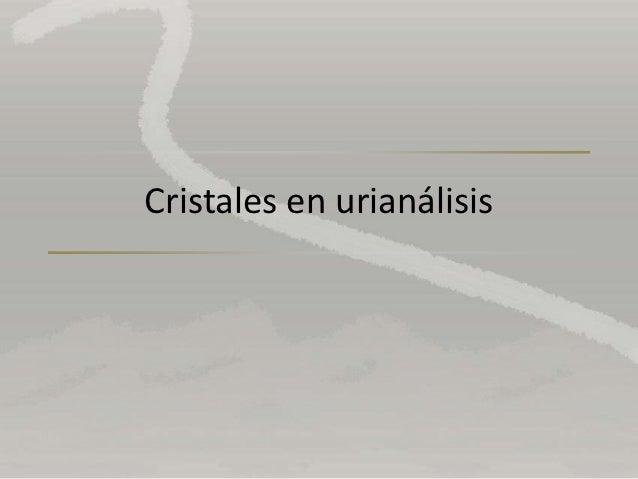 Cristales en urianálisis