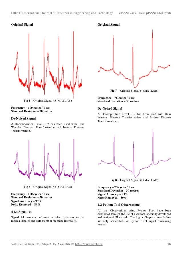 Critical analysis of radar data signal de noising by