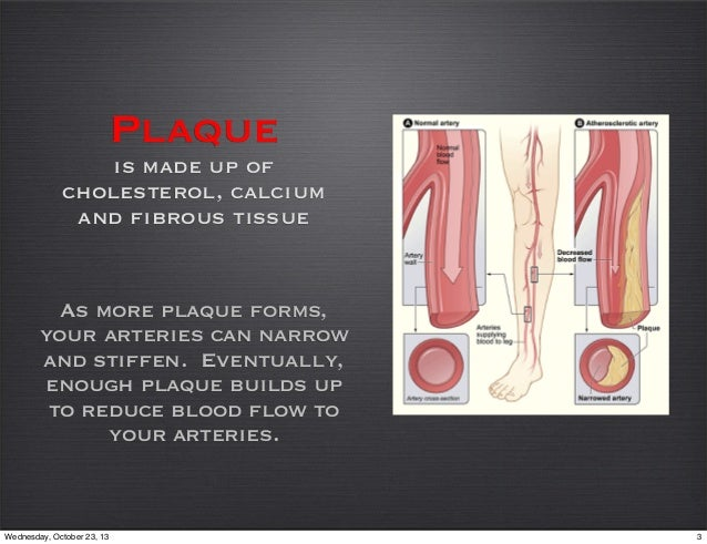Critical Limb Ischemia Slide 3