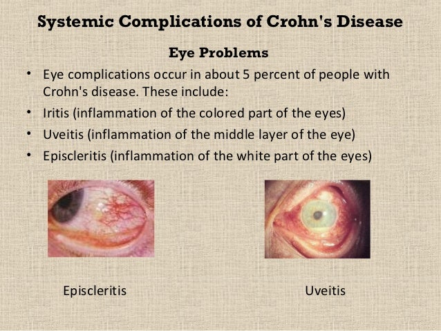 f409c776440 ... withCrohns Disease  29. Systemic Complications of Crohns Disease Eye  Problems• Eye complications ...