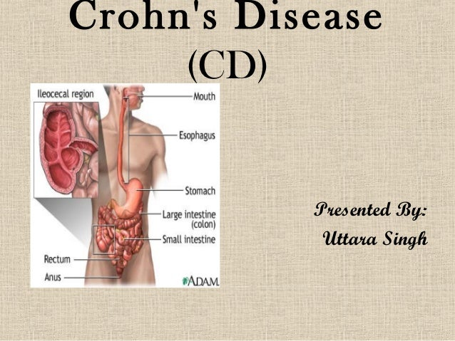 Crohns Disease     (CD)           Presented By:            Uttara Singh