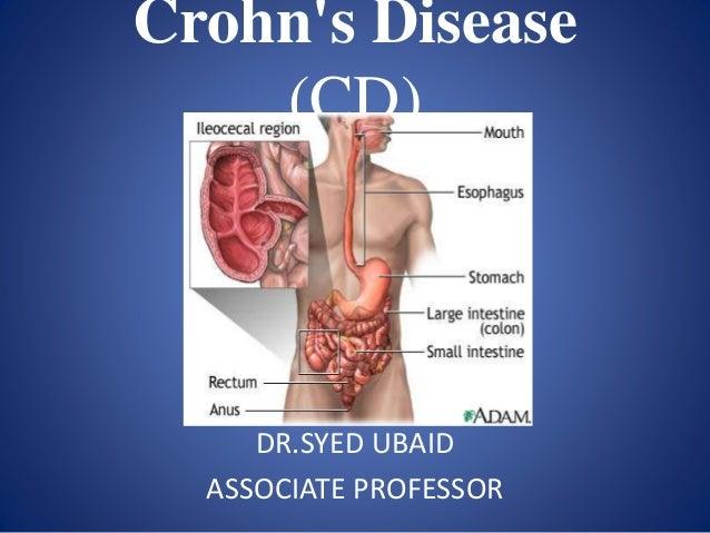 Crohn's Disease (CD) DR.SYED UBAID ASSOCIATE PROFESSOR
