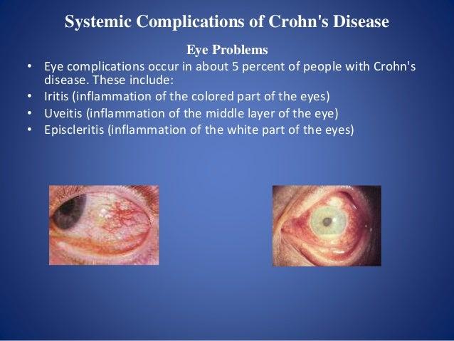 Extraintestinal manifestations of Crohn's disease Related to disease activity • Erythema nodosum • Pyoderma gangrenosum • ...
