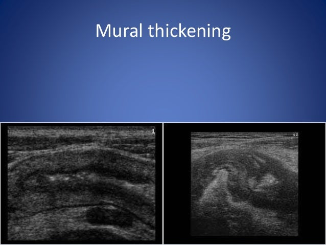 Mural hyper-vascularity