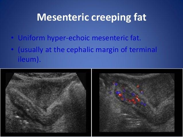 Mesenteric lymphadenopathy • Multiple oval hypoechoic masses in the mesentery.
