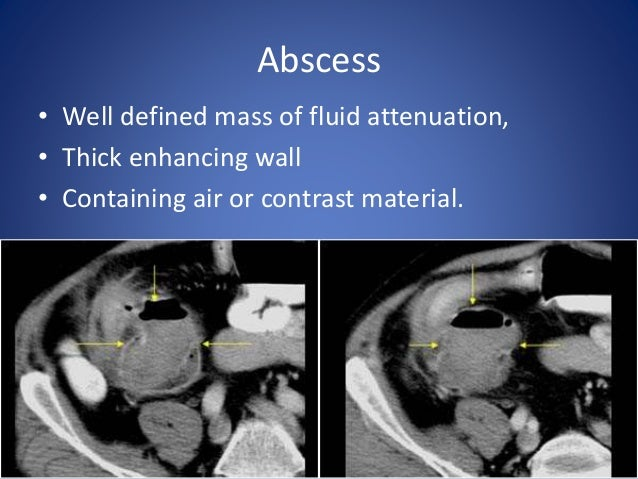 Obstruction • Proximal dilatation of small bowel loop > 2.5 cm.