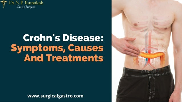 Crohn's Disease: Symptoms, Causes And Treatments www.surgicalgastro.com