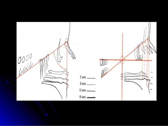 Un allongement de la partie ant de la base du crâne (x) est combiné à la croissance du complexe naso-maxillaire. Celui-ci ...