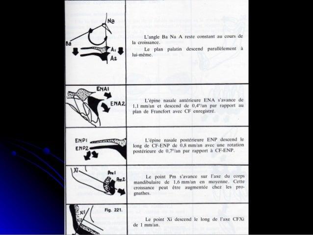 Caractérisation de l'équilibre cranio-facial: 1.1. Au niveau de la base du crâne;Au niveau de la base du crâne; 2.2. Au ni...