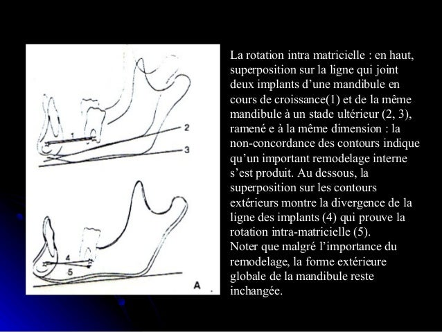 Croissance de la base du crâne:  Rappel anatomiqueRappel anatomique::  ExobaseExobase  Endobase:Endobase: .Étage antéri...
