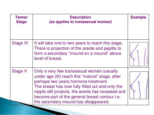 Transsexual hormone breast growth