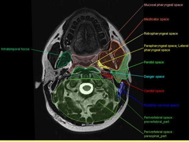 Free Ct Neck Anatomy Diagrams - Electrical Work Wiring Diagram •