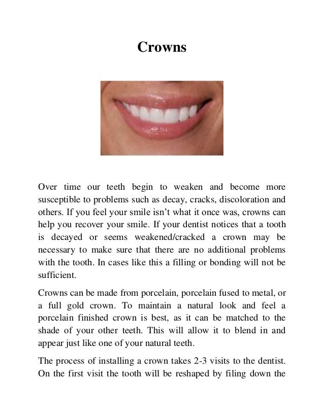 Crowns  Over time our teeth begin to weaken and become more susceptible to problems such as decay, cracks, discoloration a...