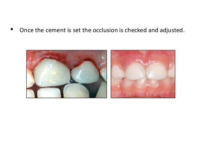 Dental strip crown