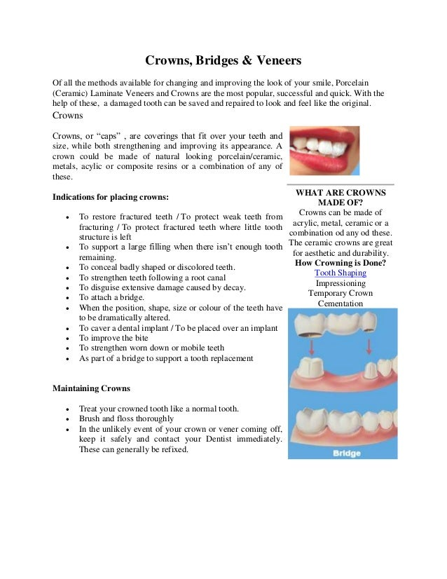 Crowns, Bridges & Veneers Of all the methods available for changing and improving the look of your smile, Porcelain (Ceram...