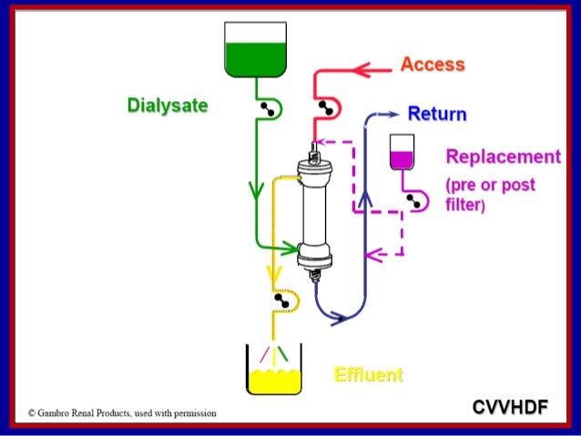 Continuous renal replacement therapy in icu Crrt 2