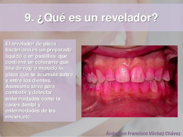 9. ¿Qué es un revelador? El revelador de placa bacteriana es un preparado líquido o en pastillas que contiene un colorante...