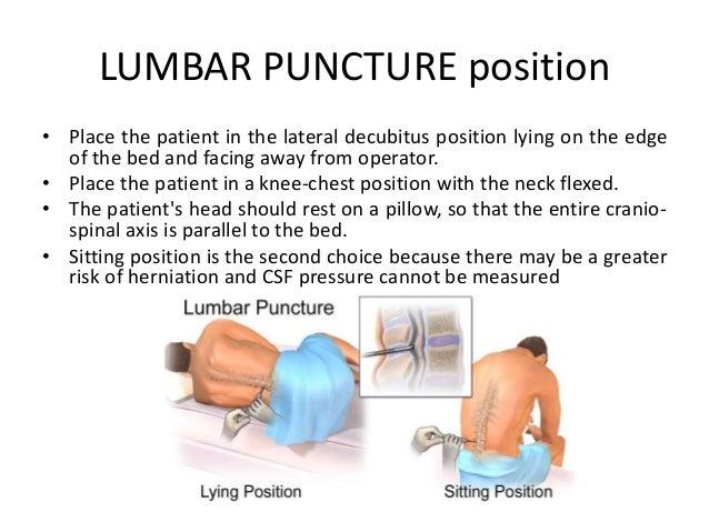 lumbar puncture position