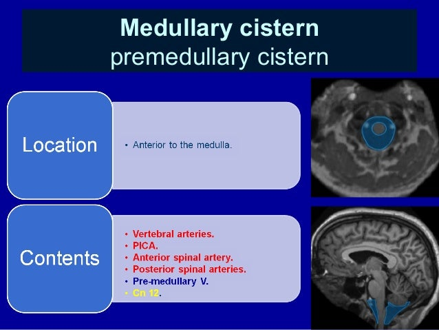 Anatomy pineal gland