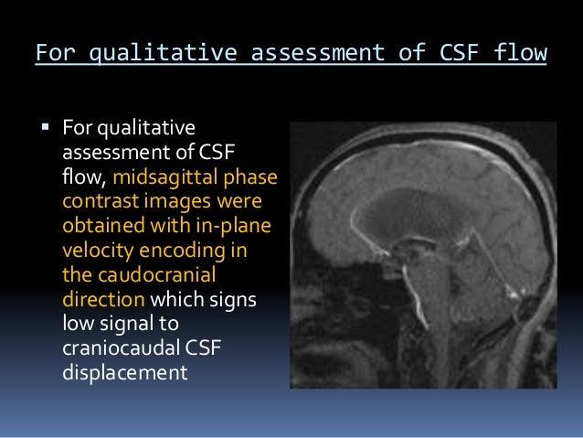 Csf Flow Study