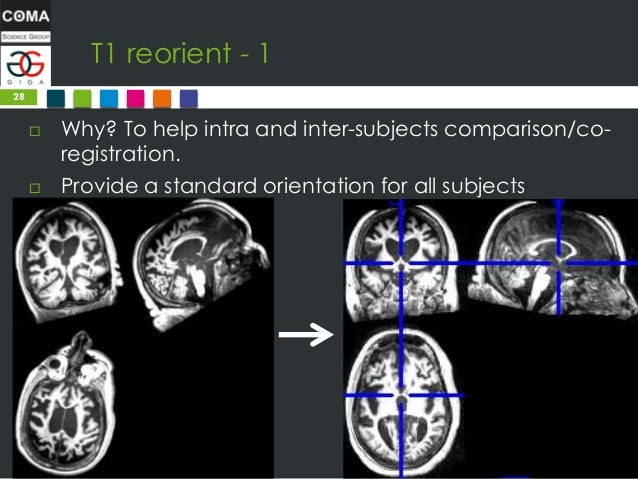 A (quick) introduction to Magnetic Resonance Imagery preprocessing an…