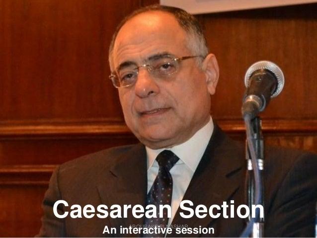 ABOUBAKR ELNASHAR Caesarean Section An interactive session