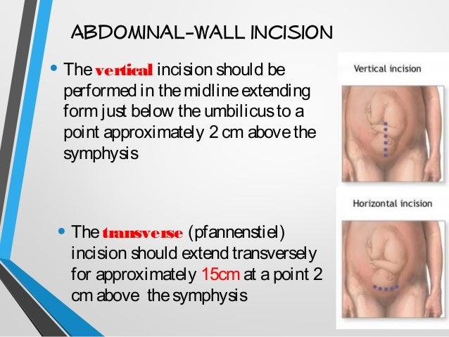 Cesarean Section Cs