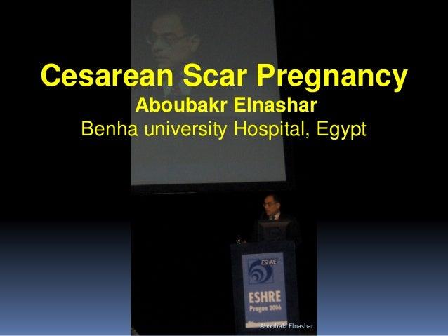 Cesarean Scar Pregnancy Aboubakr Elnashar Benha university Hospital, Egypt AboubakrElnashar