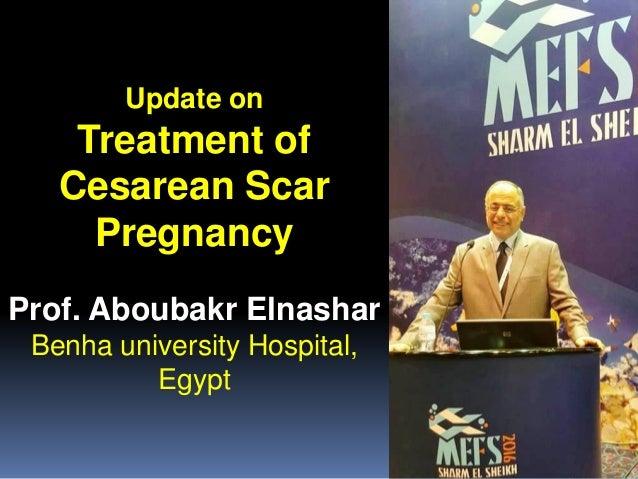 Update on Treatment of Cesarean Scar Pregnancy Prof. Aboubakr Elnashar Benha university Hospital, Egypt