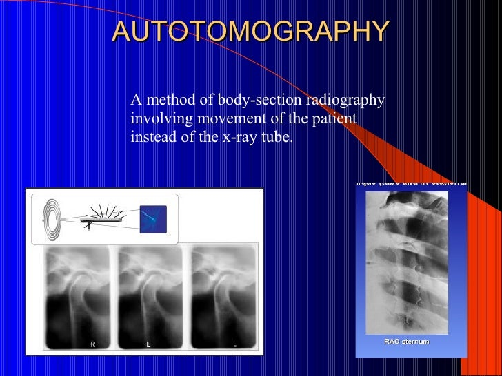 Image Result For Computerized X Ray Imaging In The Transverse Plane