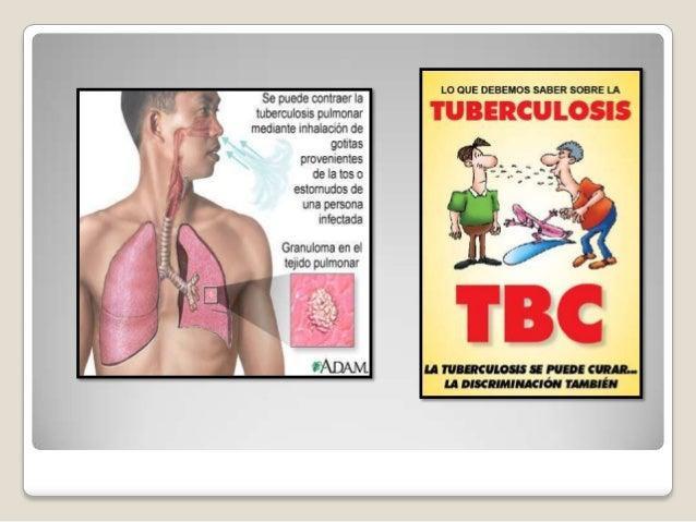 Webquest : La Tuberculosis ALUMNA: JOSELYN NICOLL ALAMA ROL: MINISTRA DE SALUD ACTIVIDAD: ¿COMO ACURRE LA TUBERCULOSIS PUL...