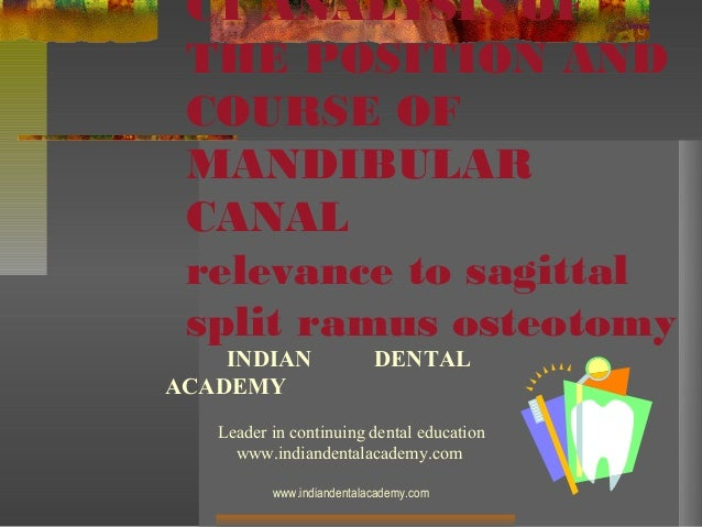 CT ANALYSIS OF THE POSITION AND COURSE OF MANDIBULAR CANAL relevance to sagittal split ramus osteotomy  INDIAN ACADEMY  DE...