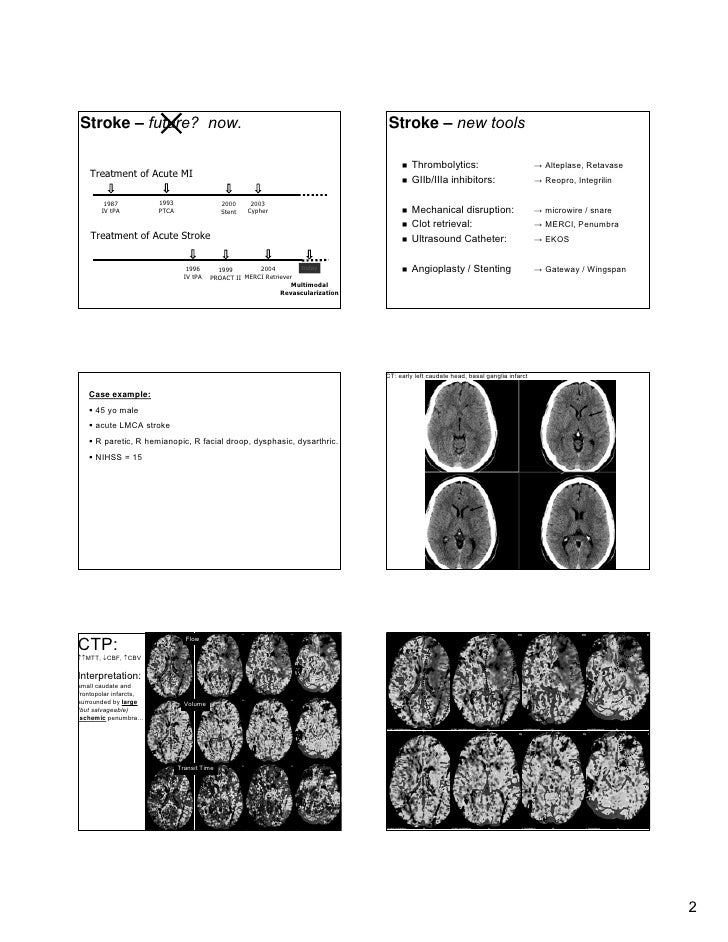 CT Angiography & CT Perfusion in Management of Acute Stroke Slide 2